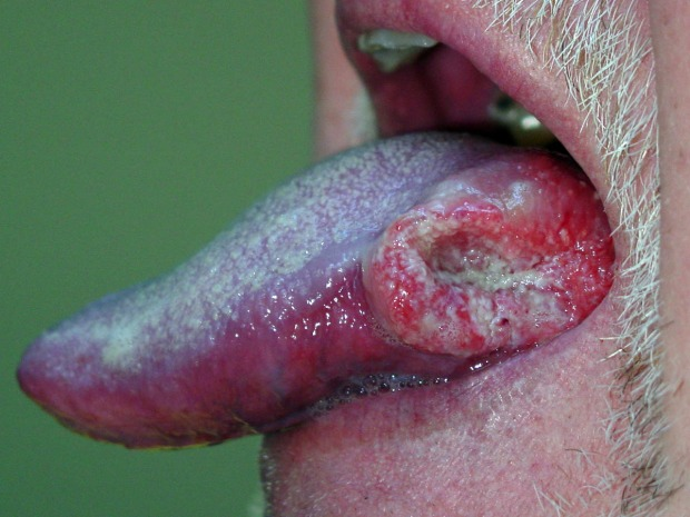 hpv-oral-cancer